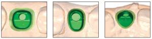 Abb. 11: ATLANTIS™ Abutments werden so gestaltet, dass sie der Form natürlicher Zähne entsprechen. Die Präferenzen des Behandler werden in der ATLANTIS™ VAD™ Software zur Anfertigung individueller Abutments berücksichtigt, die perfekt auf den Patienten und die Situation abgestimmt sind.
