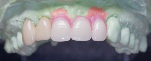Abb. 13a: Abnehmbare Zahnfleischmaske und Set-up mit Konfektionszähnen.