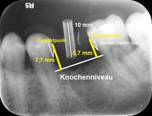"""Abb. 5: Ein vertikaler Abstand bei der Planung zwischen Kontaktpunkt und marginalem Knochen von mehr als 5 mm im Frontzahnbereich führt oft zu """"schwarzen Dreiecken"""". Für den Seitenzahnbereich sind keine Daten vorhanden."""