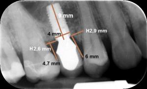 Abb. 8a: Röntgenologische und klinische Situation nach 2 Jahren Tragezeit der Prämolarenkrone. Klinisch ist die Papille vollständig ausgeformt. In der horizontalen Ebene lag der Abstand zwischen 2,6 mm und 2,9 mm.