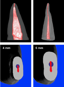 Afb.7: Sleutelgat preparatie met conventionele NiTi instrumenten. © JOE, 2010 Pacqué et. al.
